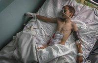 раненый ребенок («Мама погибла на глазах у мальчика, его самого с тяжелейшими ранениями доставили в больницу»)